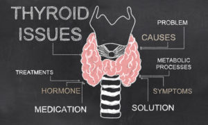 Thyroid Issues On Blackboard